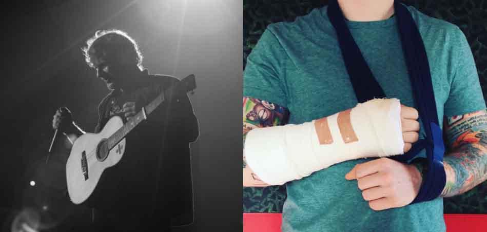 臨演出前先受傷!Ed Sheeran演唱會延期