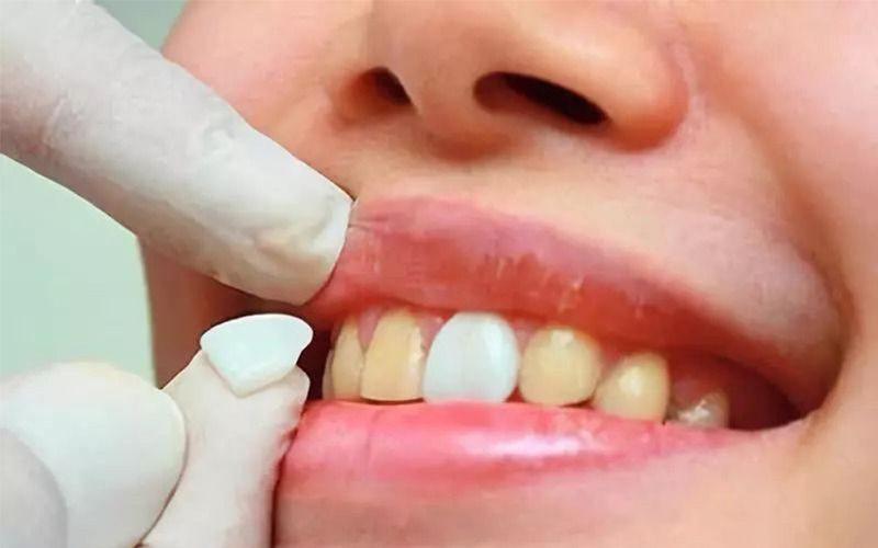 解構牙齒美白內幕!現在的明星都是做這一種「 全瓷貼面 」