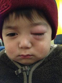 遇到孩子生病時-急性鼻竇炎