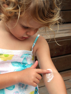 戰勝頑固濕疹 – 常見的處理方法
