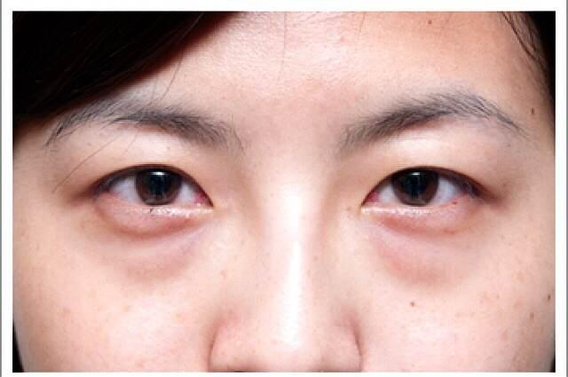Image result for 黑眼圈