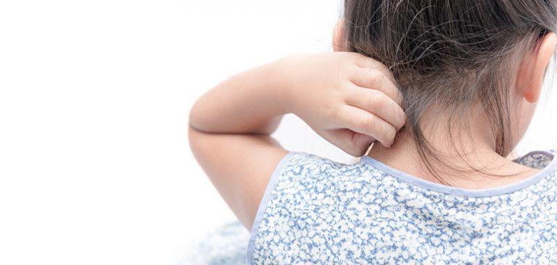 【S.O.S.】怎樣能一星期擊退濕疹?