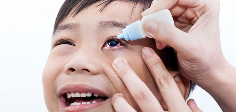 【兒童近視救星?】OK鏡與矯視藥水,邊一種較可取?