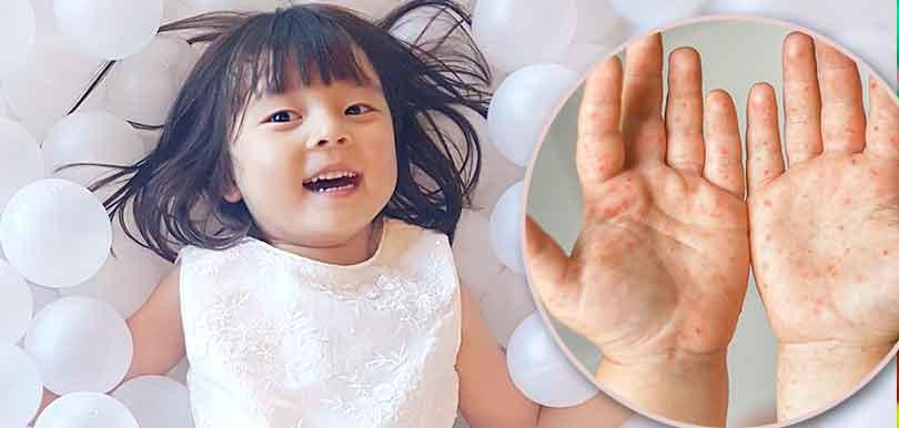嚴防轉季期間手足口病爆發,家長要做這件事