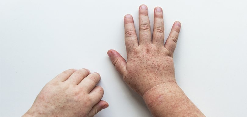 衛生署為何要特意公佈猩紅熱個案?這病是否很可怕?應如何預防和治療呢?