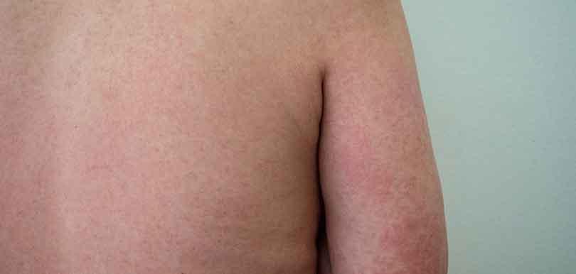 入秋是傳染病高峰期!當心爆發德國麻疹,孕婦幼兒感染高危