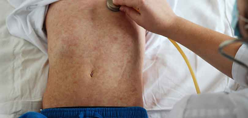 媽媽護士長專欄#41:不能掉以輕心的麻疹